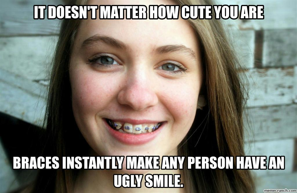 Braces Are Ugly